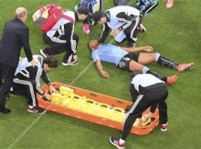Uruguay player stays in game after head injury